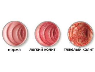 Кровь из заднего прохода при испражнении  причины лечение