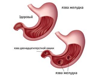 Хилак бактерии в желудке симптомы лечение. Лечение
