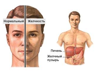 Синдром Жильбера: симптомы болезни, причины и лечение