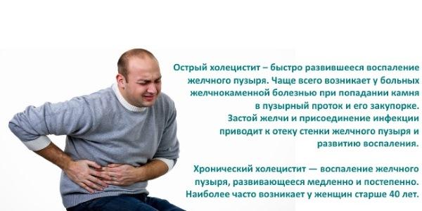 Желчнокаменная болезнь и острый холецистит