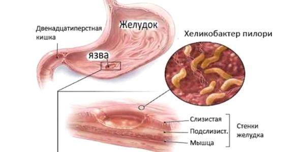 Хеликобактер пилори внутри пищеварительной системы.