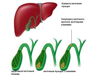 Воспаление желчного пузыря. Холецистит - болезнь века