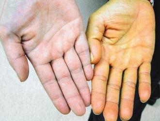 Как вылечить цирроз печени? Основные причины заболевание