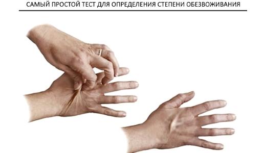 Если складка кожи разглаживается сразу - все нормально. Если  же складка сохраняется и не раглаживается даже маленький промежуток времени - воды в организме не хватает.