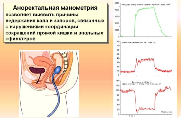 Анализ аноректальная манометрия.
