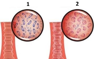 1) здоровая слизистая оболочка влагалища. 2) бактериальный вагиноз.