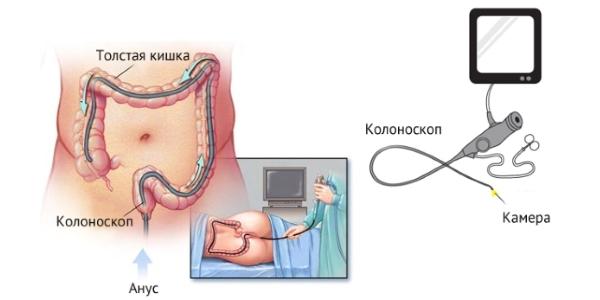 Колоноскопия позволяет оценивать протяженность и тяжесть поражения, особенно при подозрении на наличие Малигнизации.