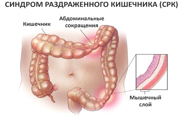 Термин используемый для описания типа пищеварительного расстройства, которое характеризуется группой распространенных симптомов, включая изменения в дефекации и боли в животе.