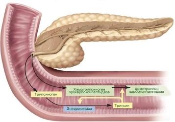 Ферменты сока поджелудочной железы, нехватка которых при панкреатите вызывает нарушение переваривания пищи.