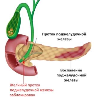 Если вы попали в больницу с приступом панкреатита, не отказывайтесь от дополнительного обследования организма.